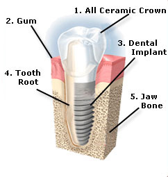 Diagram of a dental implant with labels.